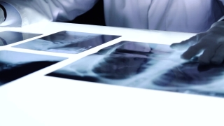 Medic Doctor Hospital Dark Room X ray Examine Bones Cancer