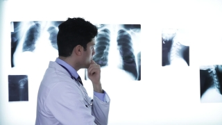 Handsome Young Male Doctor Looking at Xray Diagnose